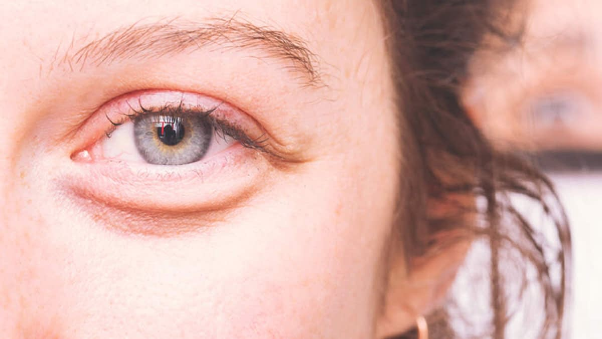 Get Rid Of Eye Puffiness