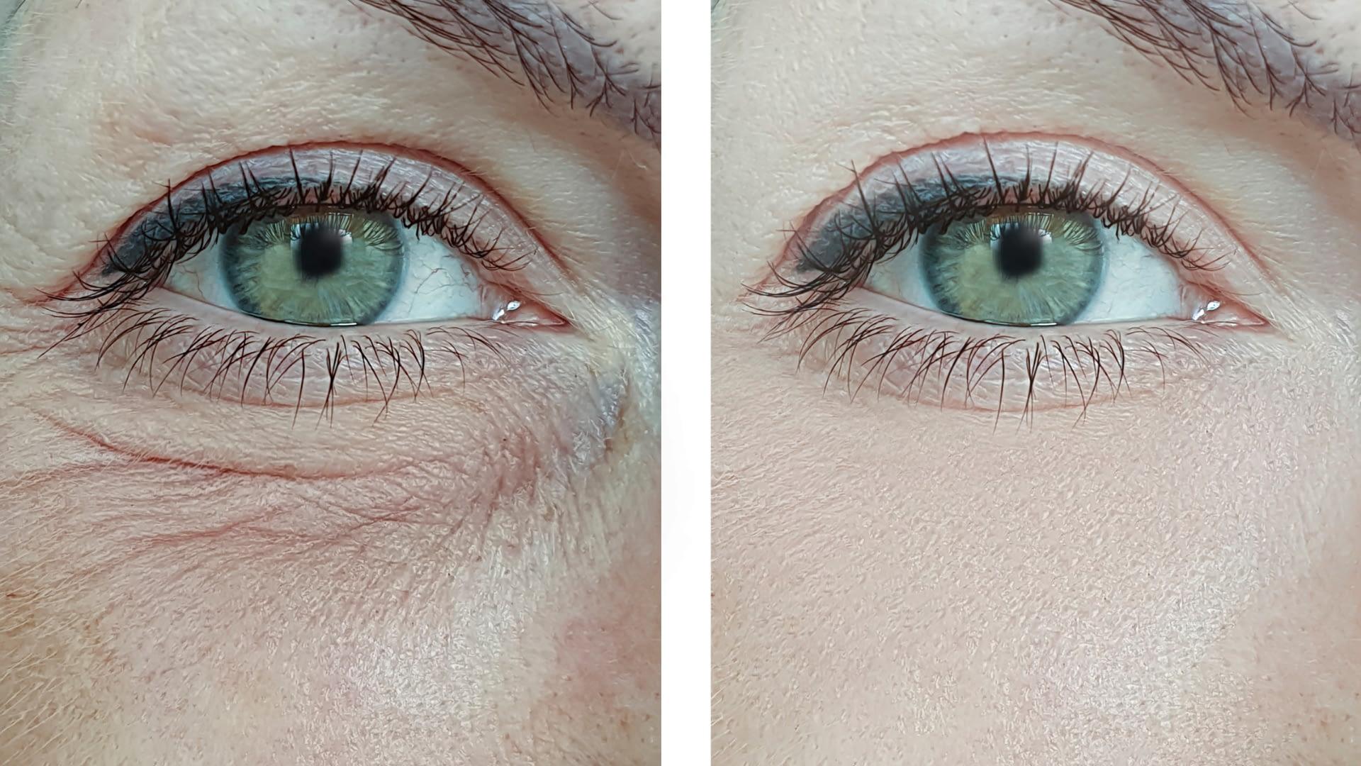 Eye Wrinkles Removal